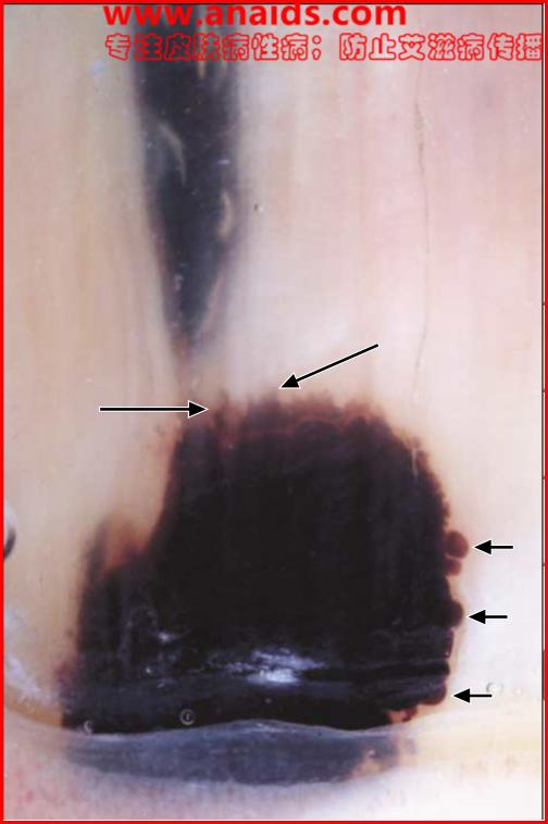 甲下出血的皮肤镜改变