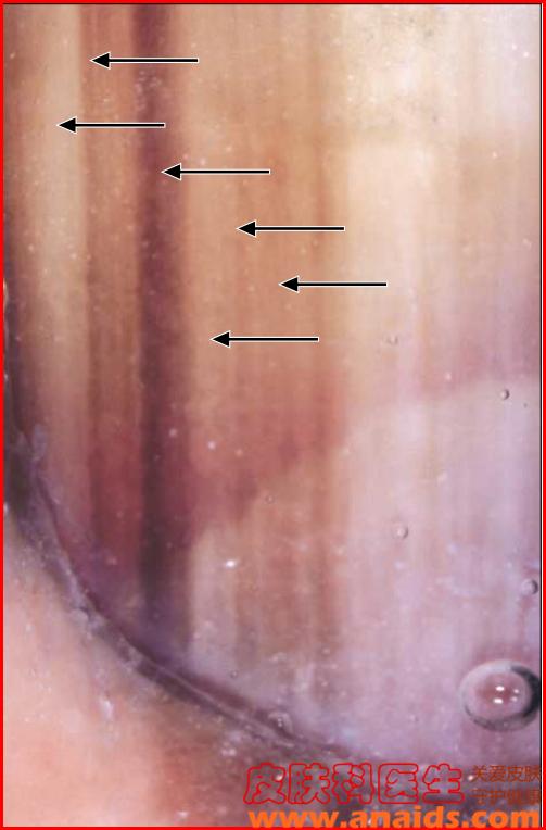 甲黑素瘤的皮肤镜表现