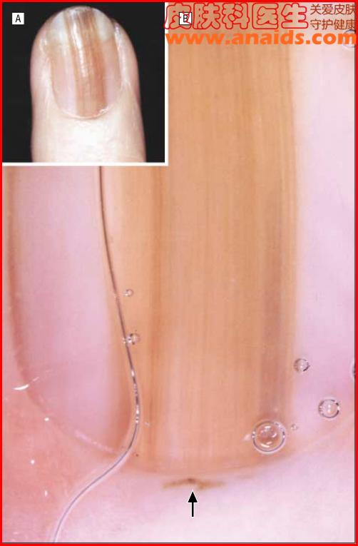 甲原位黑素瘤的皮肤镜表现